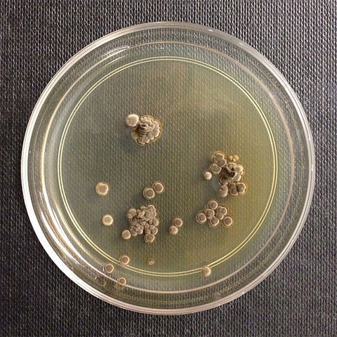 Wallemia sebi: The New Basidiomycetous Fungi causing Infections in Humans