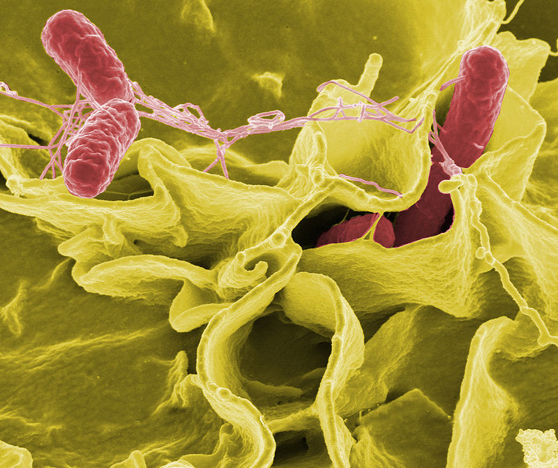 A Dozen Things You Don't Know About Typhoid Fever.
